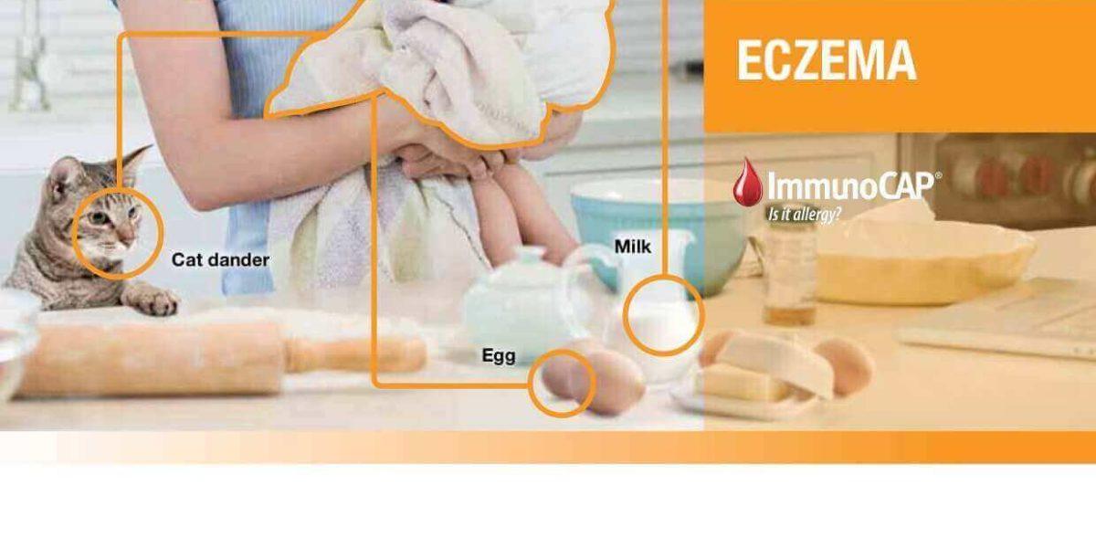 Eczema – ImmunoCAP